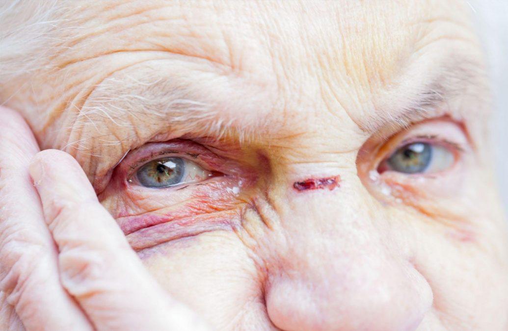 Elderly_abuse